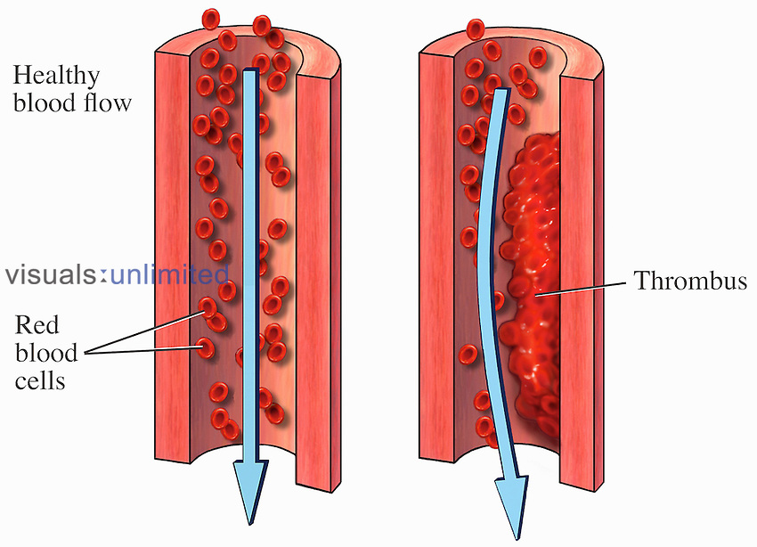 Medical illustrations of normal blood flow and blood flow through an artery with a thrombus.