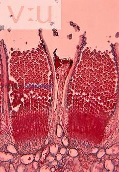Wheat Rust aecia and aeciospores (Puccinia graminis), Basidiomycota. LM X55.