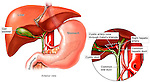 This medical illustration illustrates the normal anatomy of the biliary system in relation to the liver, abdominal aorta, and the stomach. It includes an inset with an enlargement of the ducts.