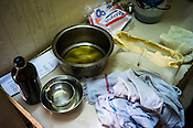 Hot oil and other ingredients are seen at the treatment room of  the Nagarjuna Ayurvedic Centre in Kochi, Kerala, India.