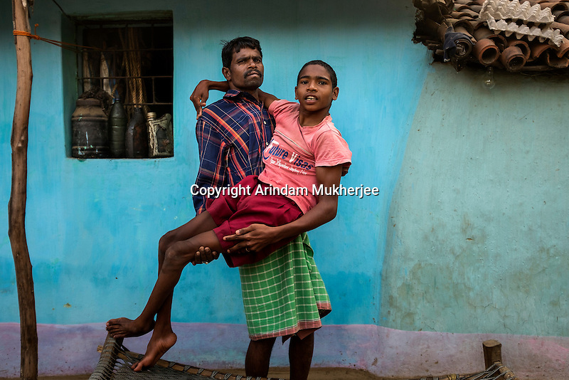 Sanjay Gope, 18, is another resident of Bango village. He is paralysed from the waist down. He was born healthy but started losing strength in his legs when he was three or four. His elder sister was born blind and with deformed limbs. She died seven years ago when she was barely 13.