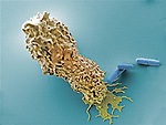 Human neutrophil white blood cell with Shigella flexneri Bacteria. SEM