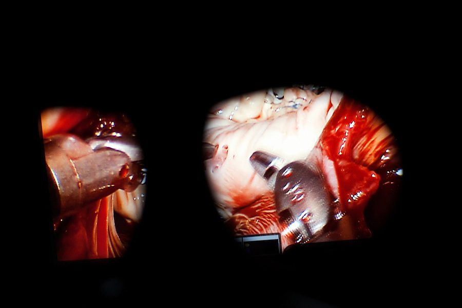 Los Angeles, California, May 15, 2012 - A view looking through the high definition, 3D viewfinder of the surgeon console of a da Vinci Surgical System controlled by Alfredo Trento, MD, Director, Cardiothoracic Surgery Division at Cedars-Sinai Heart Institute during during a Mitral Valve Repair for patient Betty Jean Trusel...A MAZE Procedure was performed to treat her atrial fibrillation, which is defined as an irregular and often rapid heart rate that commonly causes poor blood flow to the body. During atrial fibrillation, the heart's two upper chambers (the atria) beat chaotically and irregularly ? out of coordination with the two lower chambers (the ventricles) of the heart. Dr. Trento used an AtriCure cryoICE cryo-ablation probe (seen here) filled with nitrous oxide to kill the tissue, creating the effect of a dead end for the cells...The console has 3-D imaging (through the eyeholes shown) as well as two hand controllers to maneuver  one of the three of the arms are for tools that hold objects, act as a scalpel, scissors, bovie, or unipolar or bipolar electrocautery instruments and two foot controllers to  operate the energy supplied to the instruments to cauterize, coagulate, or cut the tissue  and to move the endoscopic camera in or out and therefore bring the surgical image closer or further away.