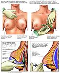 Bilateral Breast Augmentation (Breast Implants) Surgery.