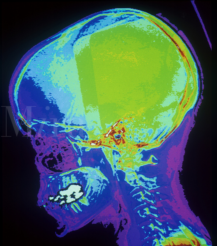 Color CAT scan of the lateral skull.