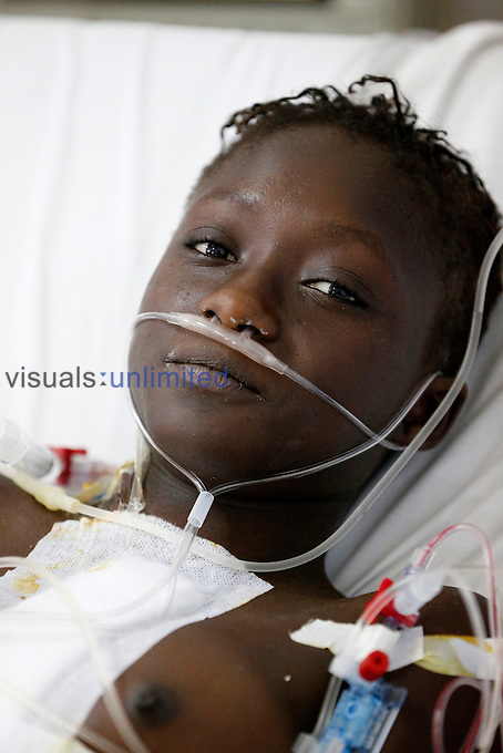 Patient in ICU, Fann Hospital, Dakar, Senegal.