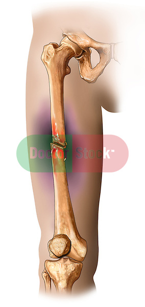 Femur Fracture; this medical illustration show an anterior view of a femur fracture.