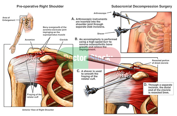 Shoulder Impingement Injury With Arthroscopic Surgery Doctor Stock