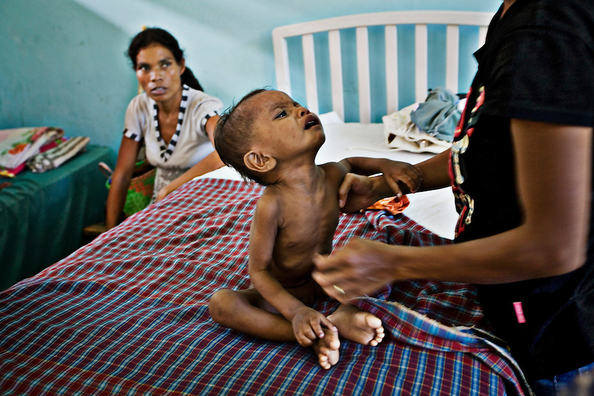 A child dehydrated with diarrhea receives treatment at the Bairo Pite Clinic in Dili, East Timor, January 6, 2010. East Timor has one of the highest child and infant mortality rates in the world.