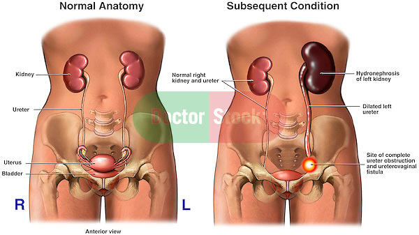 Post Operative Obstruction Of The Ureter With Subsequent Kidney