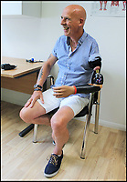 Real-life action man! - First in Britain with detachable bionic limb.