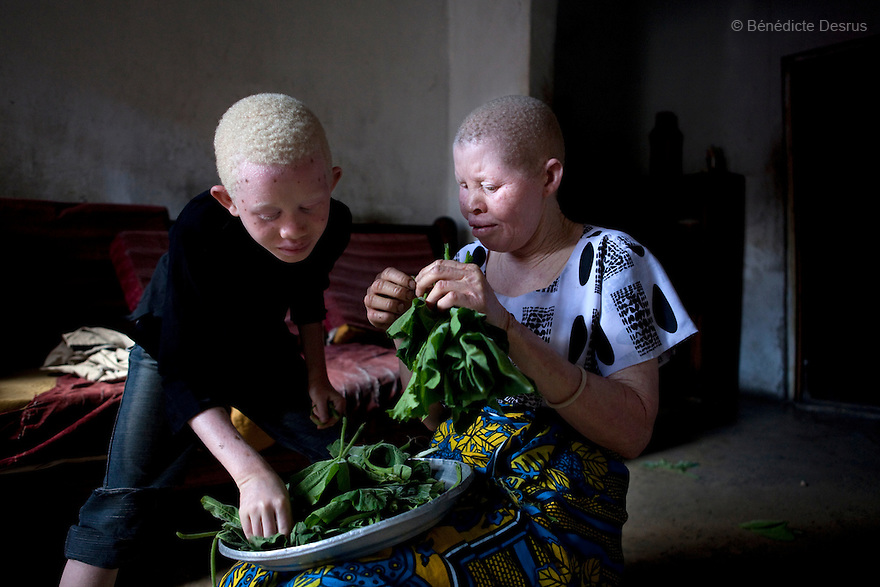 June 28, 2010 - Dar es Salaam, Tanzania - Jutia Jalehe and Yusuphu Ally, the 8 year old son of Nuru Mohamedy prepare dinner at home. Ali Mohamed is a 61 year old Muslim man with albinism living in Tanzania where he has a shop selling rice and grains. Ali married his first wife, Jutia Jalehe, in 1978. Jutia is also an albino and together they had 1 son with albinism named Salehe Ally. In 1983, Mohamed married his second wife, Nuru Mohamedy who did not have Albinism. Together they had 6 children, two of them with albinism and four of them without albinism. Albinism is a recessive gene but when two carriers of the gene have a child it has a one in four chance of getting albinism. Tanzania is believed to have Africa' s largest population of albinos, a genetic condition caused by a lack of melanin in the skin, eyes and hair and has an incidence seven times higher than elsewhere in the world. Over the last three years people with albinism have been threatened by an alarming increase in the criminal trade of Albino body parts. At least 53 albinos have been killed since 2007, some as young as six months old. Many more have been attacked with machetes and their limbs stolen while they are still alive. Witch doctors tell their clients that the body parts will bring them luck in love, life and business. The belief that albino body parts have magical powers has driven thousands of Africa's albinos into hiding, fearful of losing their lives and limbs to unscrupulous dealers who can make up to US$75,000 selling a complete dismembered set. The killings have now spread to neighboring countries, like Kenya, Uganda and Burundi and an international market for albino body parts has been rumored to reach as far as West Africa. Photo credit: Benedicte Desrus