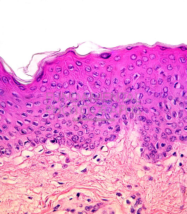 ANIMAL TISSUE - EPITHELIUM<br /> Stratified Sqaumous Epithelium (LM) 100x mag<br /> Squamous cells are flat cells which form the surface of an epithelium (such as skin or mucous membranes). They can be identified histologically by the fact that they look flattened and thin under a microscope