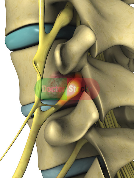 Bony Tumor of the Vertebrae Compressing Nerve Root; this 3d medical image features a detailed view of a bony tumor growing out of the posterior aspect of a vertebrae thus compressing the nerve root.