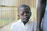 Boy With Eye Tumor, Nyanza Provincial General Hospital