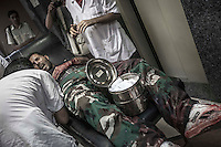 An opposition fighter lies on a trolley as he gets medical assistance after got injured during a combat with the Assad's army in Salahaideen neighborhood.