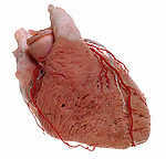 Cast of Human Heart coronary vessels.
