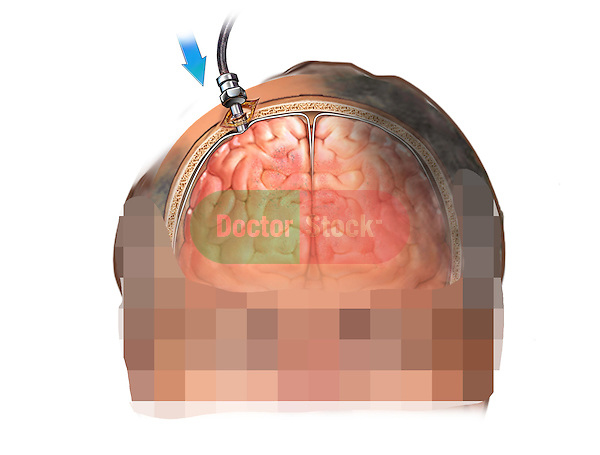 This stock medical image features a coronal (anterior cut section) view of a white male with insertion of an Intracranial pressure monitor (ICP) bolt.