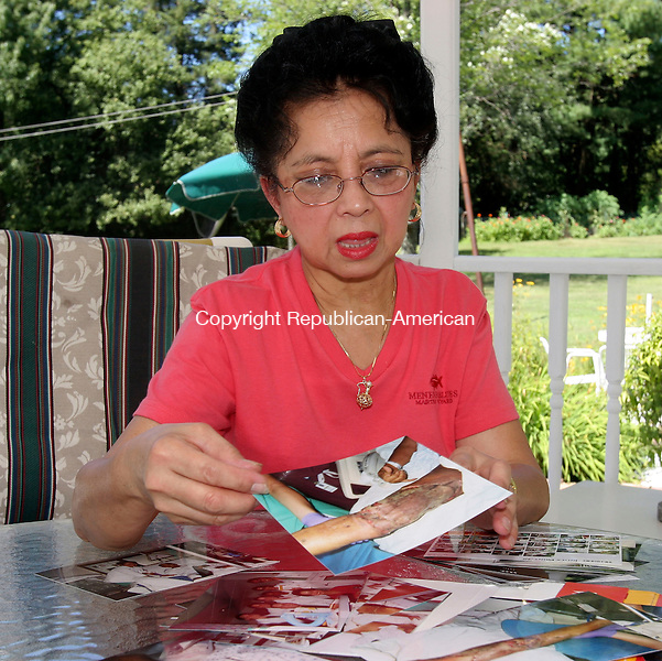 MIDDLEBURY, CT-09August 2006-080906TK14-  Mirasol Josef displays photographs that show the extent of the surgery that was needed on the leg as the result of tree-cutting accident. Tom Kabelka Republican-American (Mirasol Josef)