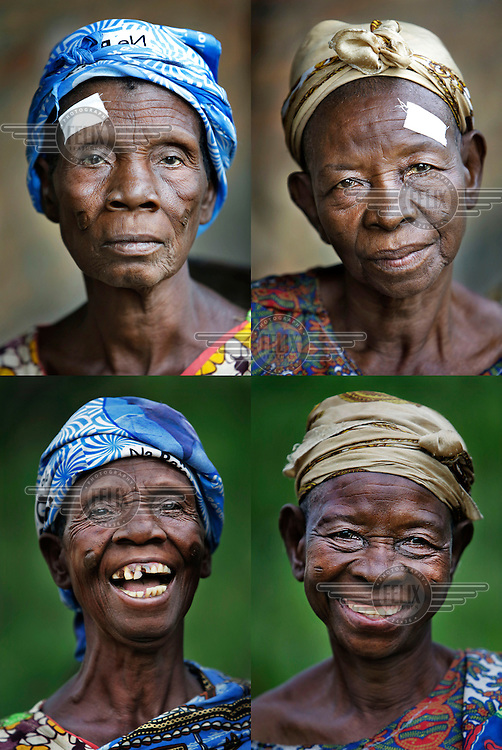 A montage of two women waiting for operations to remove cataracts. The white sticker indicates which eye is to undergo the procedure. <br /> <br /> From his base in Mbuji Mayi Hungarian ophthalmologist Friar Richard Hardi and his team travelled deep into the Congolese rainforest, by 4x4 and canoe, to treat people in isolated communities most of whom have never seen an ophthalmologist. At a small village called Pania they established a temporary field hospital and over the next three days made hundreds of consultations. Although both conditions are preventable, many of the patients they saw had Glaucoma or River Blindness (onchocerciasis) that had permanently damaged their eyesight. However, patients with cataracts, a clouding of the eye's lens, who were suitable for treatment were booked for an operation. For two days the team carried out the ten minute procedure on one patient after another. The surgery involves making a 2.2mm incision into the remove the damaged lens that is then replaced by an artificial one. Doctor Hardi is one of the few people willing to make such a journey but is inspired to do so by his faith and, as he says: 'Here I feel that I can really make a difference in people's lives'. /Felix Features