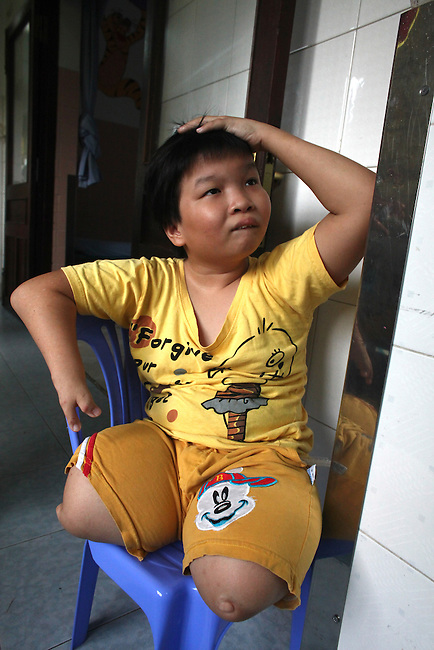 A girl born without legs sits in the Agent Orange children's ward of Tu Du Hospital in Ho Chi Minh City, Vietnam.  About 500 of the 60,000 children delivered each year at the maternity hospital, Vietnam's largest, are born with deformities, some because of Agent Orange, according to doctors. May 1, 2013.