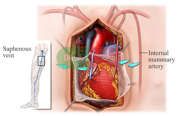 This surgical illustration depicts the post-operative condition of a coronary artery bypass procedure with a saphenous vein graft and an internal mammary-coronary artery anastomosis. The heart, pericardium, saphenous vein graft, internal mammary artery, and all the great vessels, including the aorta, superior vena cava, and pulmonary artery are viewed through a midline thoracic incision.
