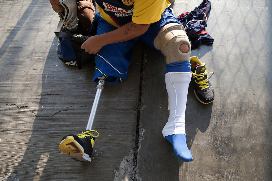"A player from Guerreros Aztecas, removes his prosthetic leg before training with his team in Mexico City, Mexico on June 12, 2014. Guerreros Aztecas (""Aztec Warriors"") is Mexico City's first amputee football team. Founded in July 2013 by five volunteers, they now have 23 players, seven of them have made the national team's shortlist to represent Mexico at this year's Amputee Soccer World Cup in Sinaloa this December. The team trains twice a week for weekend games with other teams. No prostheses are used, so field players missing a lower extremity can only play using crutches. Those missing an upper extremity play as goalkeepers. The teams play six per side with unlimited substitutions. Each half lasts 25 minutes. The causes of the amputations range from accidents to medical interventions – none of which have stopped the Guerreros Aztecas from continuing to play. The players' age, backgrounds and professions cover the full sweep of Mexican society, and they are united by the will to keep their heads held high in a country where discrimination against the disabled remains widespread. (Photo by Bénédicte Desrus)"