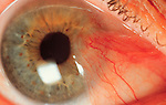 Pterygium, an abnormal growth on the conjunctiva which can be surgically removed.