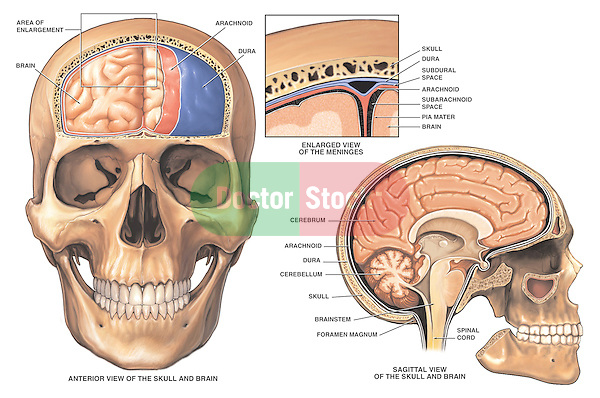Accurately depicts anatomy of the brain and meninges (brain coverings).  Shows the forebrain covered by dura mater and arachnoid mater. Shows an enlargement with labels for the dura, arachnoid and pia mater, as well as the subarachnoid and subdural spaces. The third illustration shows a mid-line cut-away view of the skull and brain with labels for the aforementioned structures plus the cerebrum, cerebellum, brainstem and spinal cord.