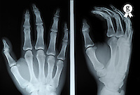 X-ray image of man's (18) right hand (Licence this image exclusively with Getty: http://www.gettyimages.com/detail/97580220 )