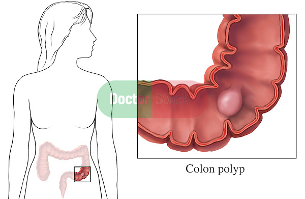 This medical exhibit portrays a colon polyp within a cut-away anterior (front) view of the colon. An orientation illustration is included, showing where the colon is located within an outline of a female figure. A label identifies the polyp.
