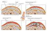 This exhibit features the progression of a left hand burn deep into the tissue (third degree) with spread of infection.