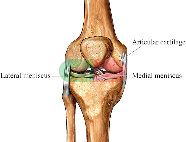 This medical exhibit pictures the cartilage of the knee joint from an anterior (front) view. Labeled structures on this graphic include the articular cartilage, lateral meniscus, and medial meniscus.
