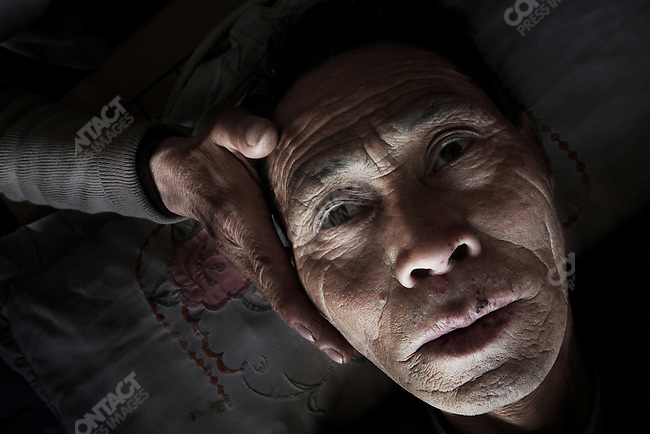 After two operations -- that cost him 200 000 yuan -- Zhao Bingkun, 66, is in the terminal phase of an esophagus cancer diagnosed in 2004. Village of Zhaozhuang in Wugang City along the Hong River. Henan Province. April 7, 2009.