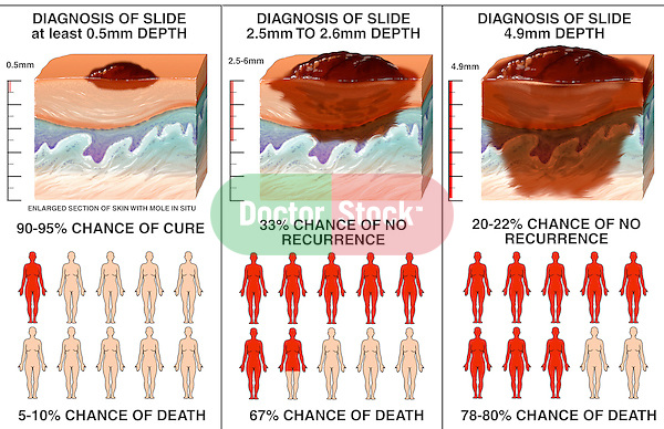 Skin Cancer - Metastatic Melanoma. This medical illustration series pictures three stages of progression (metastasis) in a melanoma case. It features cut-sections of the melanoma lesion corresponding to figures illustrating the survival rate for each timeframe. As the melanoma grows in size (metastasizes), the survival rate drops. This case exhibit was designed to visually show that melanoma caught early-on carries a significantly higher survival rate.