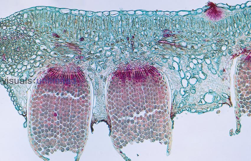 Oat Crown Rust aecia and pycnia (Puccinia coronata), Basidiomycota, LM X30.