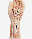 Human hand dissection to show the muscles, nerves, and blood vessels of the palmar surface of the left hand. The median nerve can be seen branching off to supply the fingers.
