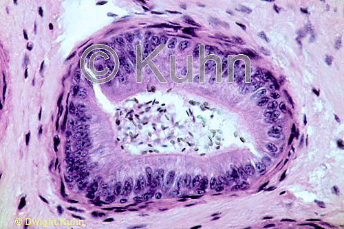 CZ40-001a  Testis - epidymis section seminiferous tubule with sperm   400x