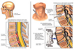 Spine Surgery - Cervical Disc Protrusions at C4-5 and C5-6 with Spinal Fusions.