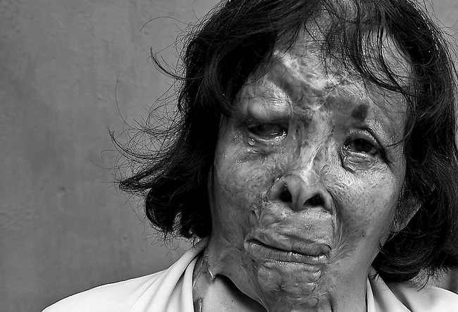 Acid attack survivor Thong Kham sheds tears as she talks about her scars in a result of attack in May 1990. She believes that the perpetrator made a mistake and attacked the wrong person. Thong Kham lives and works at Cambodian Acid Survivors Charity (CASC), NPO that helps and support acid attack victims,  in Phnom Penh, Cambodia.