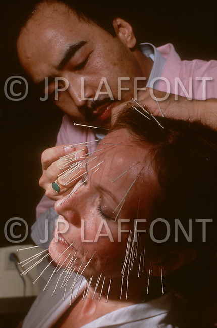 October 20, 1982. Los Angeles, CA. - 'Rejuventation Center' Acumpuncture Clinic in Beverly Hills, run by Dr. Zion Yu who treats patients using traditional acupunture as well as lazer treatment for the removal of facial wrinkles.