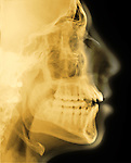 Lateral skull x-ray of a 18 year old man