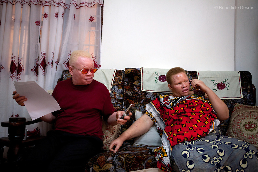 10 june 2010 - Dar Es Salaam, Tanzania - Samuel Herman Mluge (51yrs) an albino rights activist inTanzania and his wife Teresa January (46 yrs) have five children, all with albinism. Albinism is a recessive gene but when two carriers of the gene have a child it has a one in four chance of getting albinism. Tanzania is believed to have Africa' s largest population of albinos, a genetic condition caused by a lack of melanin in the skin, eyes and hair and has an incidence seven times higher than elsewhere in the world. Over the last three years people with albinism have been threatened by an alarming increase in the criminal trade of Albino body parts. At least 53 albinos have been killed since 2007, some as young as six months old. Many more have been attacked with machetes and their limbs stolen while they are still alive. Witch doctors tell their clients that the body parts will bring them luck in love, life and business. The belief that albino body parts have magical powers has driven thousands of Africa's albinos into hiding, fearful of losing their lives and limbs to unscrupulous dealers who can make up to US$75,000 selling a complete dismembered set. The killings have now spread to neighbouring countries, like Kenya, Uganda and Burundi and an international market for albino body parts has been rumoured to reach as far as West Africa. Photo credit: Benedicte Desrus
