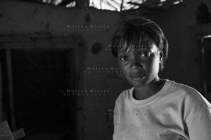 Sopravvissuti all'Ebola in Sierra Leone nella foto Adamsay Kamara ha sofferto d'Ebola per un mese e ha perso il padre, due fratelli, uno zio e tre cugini bambini people Lunsar 15/03/2016 foto Matteo Biatta<br /> <br /> Ebola survivors in Sierra Leone in the picture Adamsay Kamara had suffered of Ebola for one month lost her father two brothers one uncle and three children who was cousins people Lunsar 15/03/2016 photo by Matteo Biatta