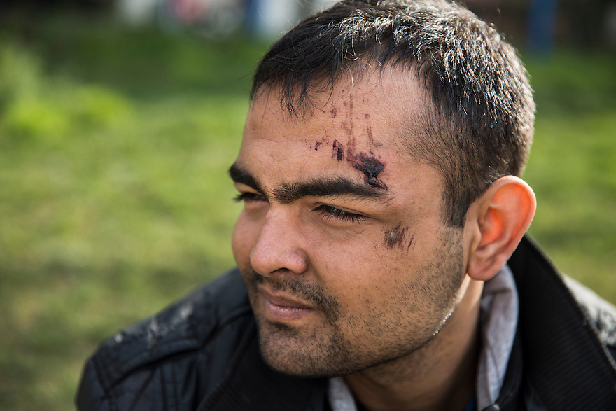 Shokat Khan, 20, an Afghan national, said he was hit on the head with a revolver during a beating by Bulgarian police. He and his group of 10 migrants encountered the police after crossing the border from Turkey near the village of Shtit. He was also struck on the leg and hand and appeared to have a broken finger. PHOTO BY JODI HILTON