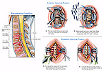 Spine Surgery - C4-5 Disc Herniation with Complex Multi-level Spinal Fusion.