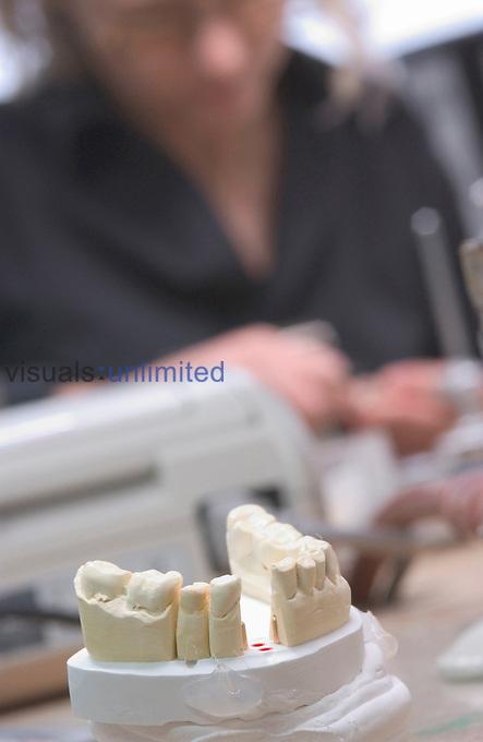 Dentist working on plaster model