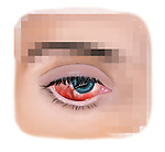 Scarring of the eye after laceration of the sclera and cornea.