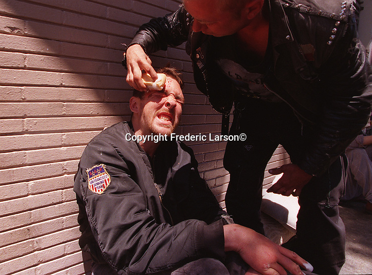 Fish is medically attended to by Travis after getting into a fight on Haight Street in San Francisco, California.