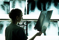 Doctor holding up a patients x-ray to a lightbox.